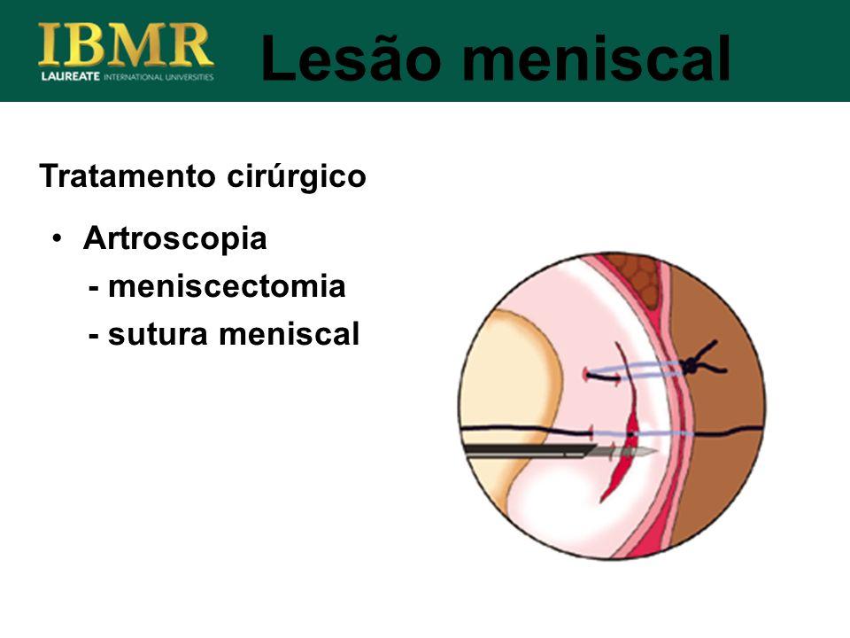 Lesão meniscal Tratamento cirúrgico Artroscopia - meniscectomia - sutura meniscal