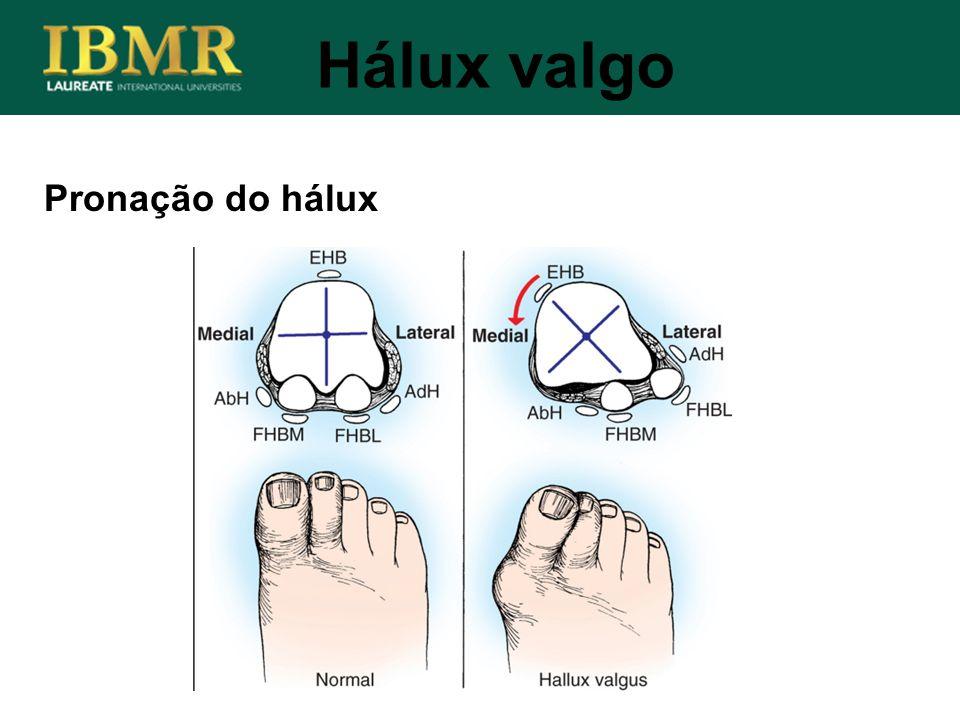Pronação do hálux