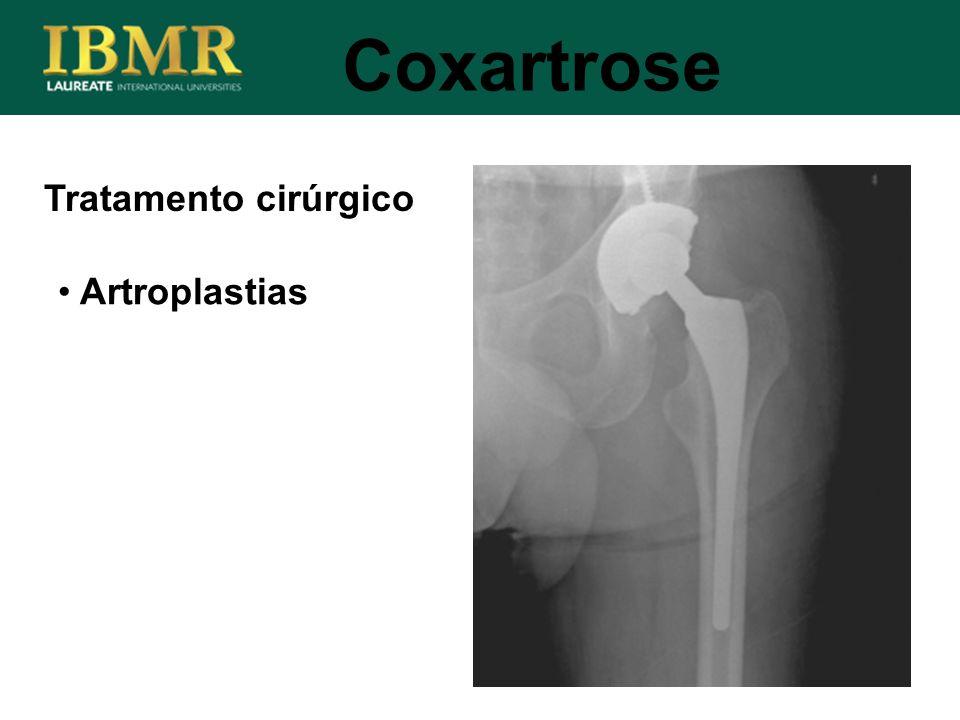 Tratamento cirúrgico Coxartrose Artroplastias
