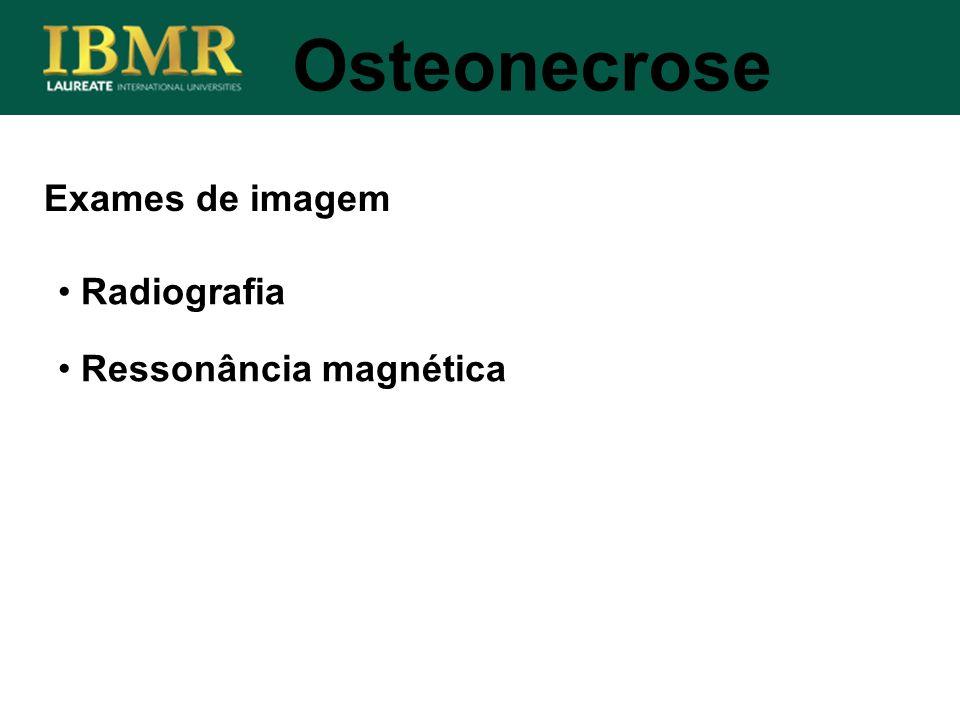 Exames de imagem Osteonecrose Radiografia Ressonância magnética