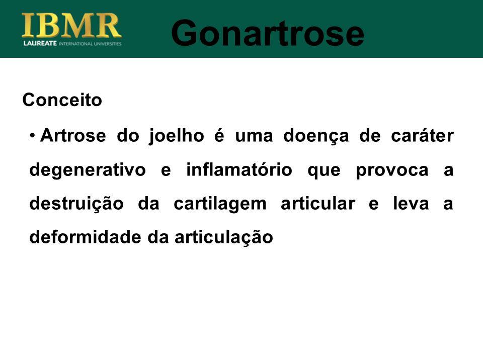 Conceito Artrose do joelho é uma doença de caráter degenerativo e inflamatório que provoca a destruição da cartilagem articular e leva a deformidade d