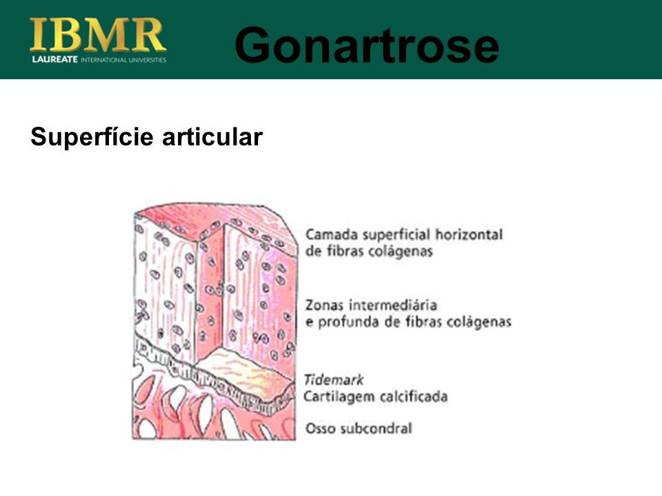 Superfície articular Gonartrose