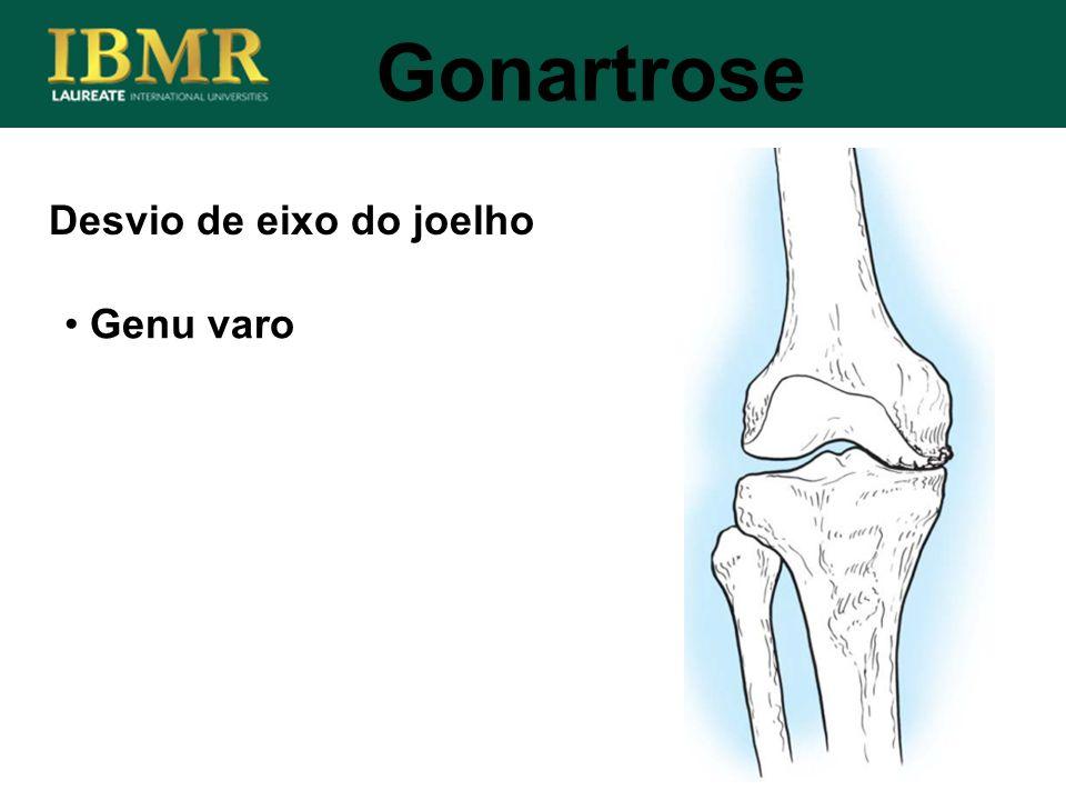 Desvio de eixo do joelho Gonartrose Genu varo