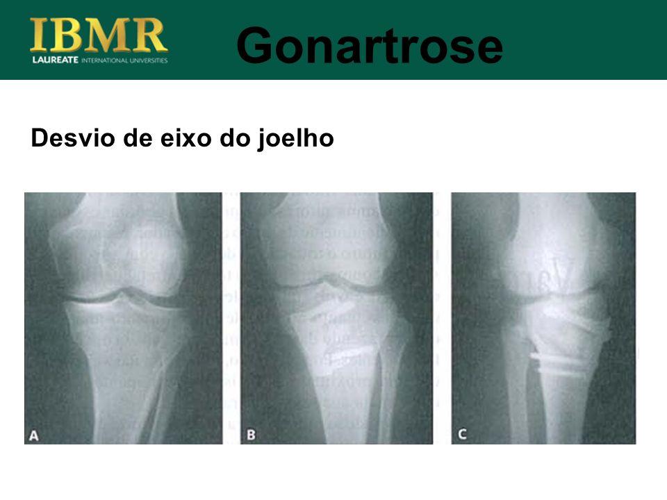 Desvio de eixo do joelho Gonartrose