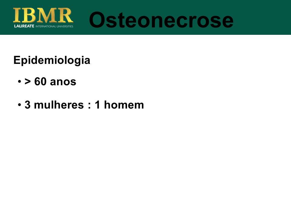 Epidemiologia > 60 anos 3 mulheres : 1 homem Osteonecrose
