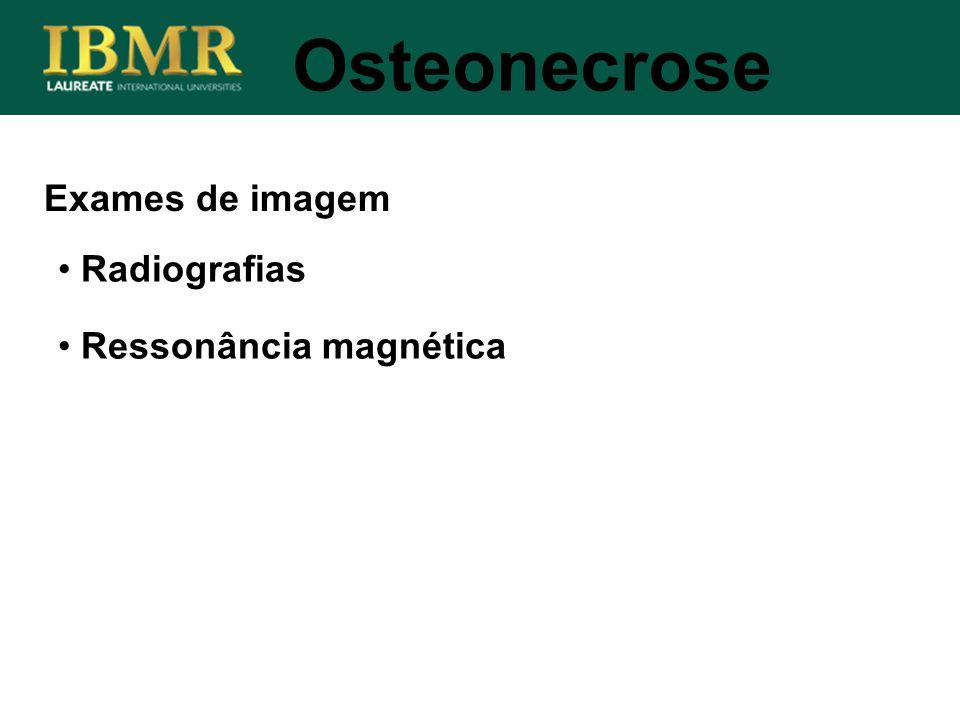 Exames de imagem Radiografias Ressonância magnética Osteonecrose