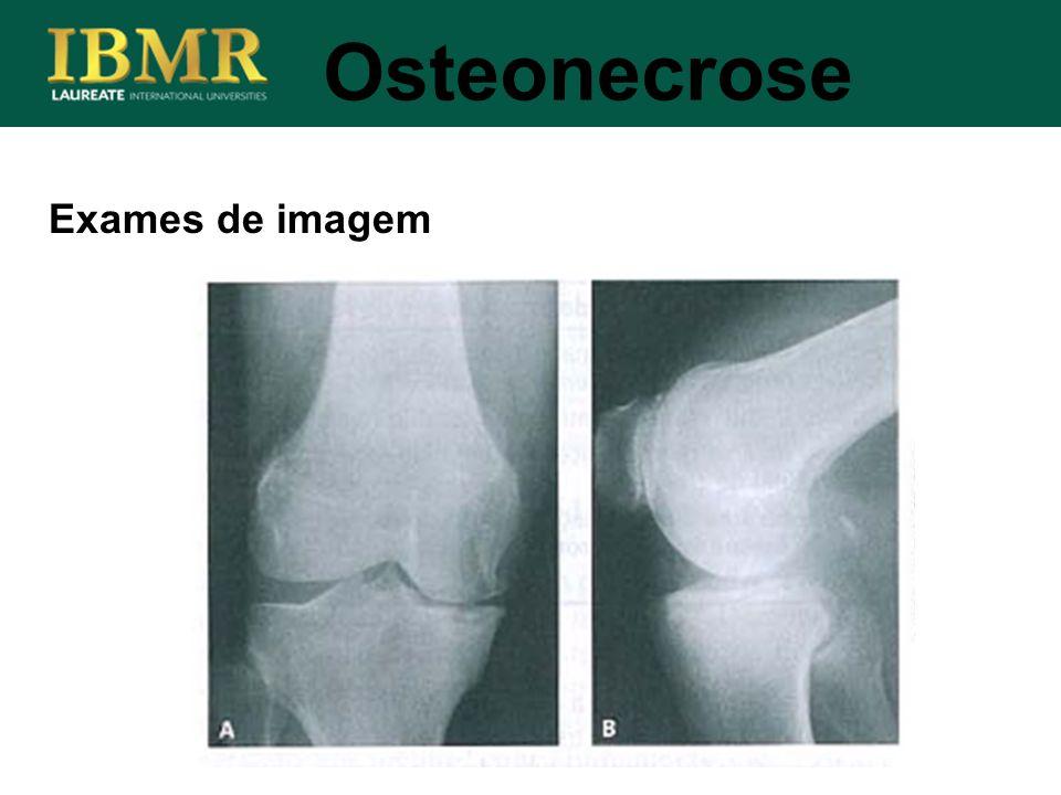 Exames de imagem Osteonecrose