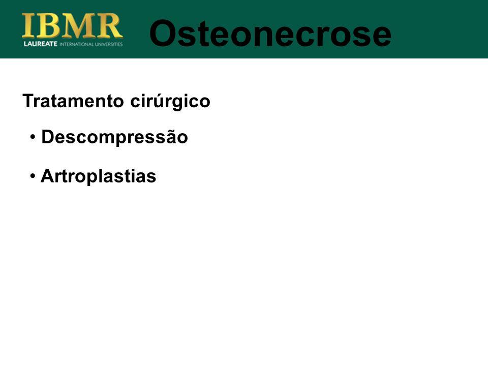 Tratamento cirúrgico Osteonecrose Descompressão Artroplastias
