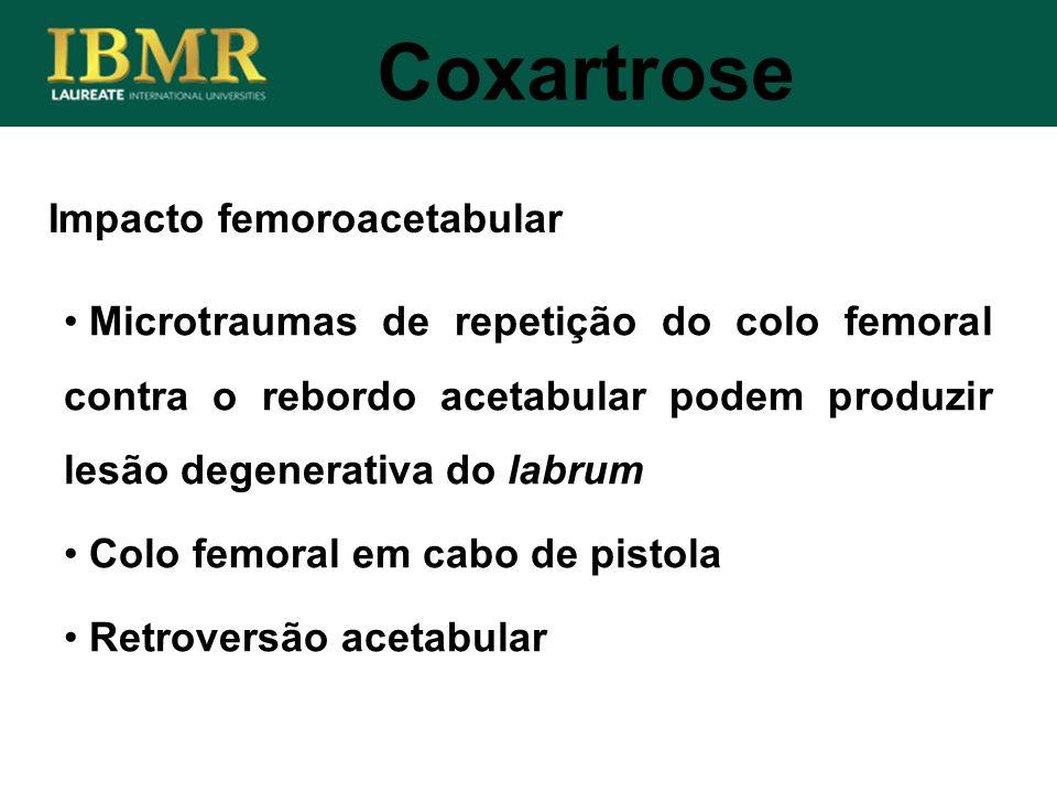Coxartrose Microtraumas de repetição do colo femoral contra o rebordo acetabular podem produzir lesão degenerativa do labrum Colo femoral em cabo de p