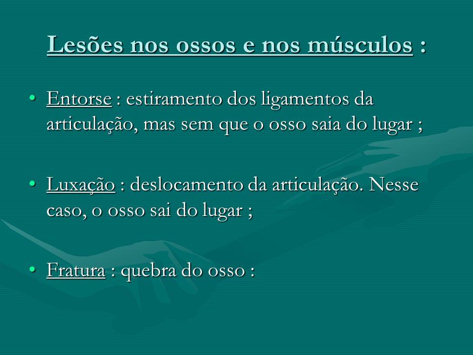 Lesões nos ossos e nos músculos : Entorse : estiramento dos ligamentos da articulação, mas sem que o osso saia do lugar ;Entorse : estiramento dos lig