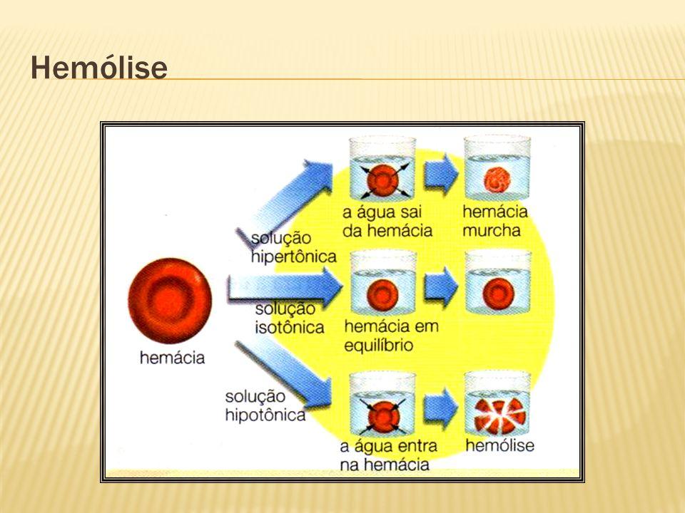 Hemólise