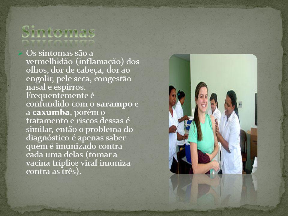 Os sintomas são a vermelhidão (inflamação) dos olhos, dor de cabeça, dor ao engolir, pele seca, congestão nasal e espirros. Frequentemente é confundid