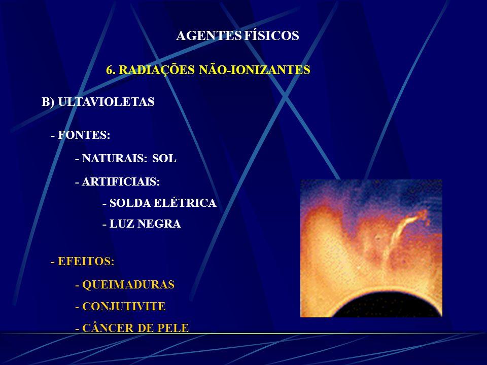 AGENTES FÍSICOS 6. RADIAÇÕES NÃO-IONIZANTES B) ULTAVIOLETAS - FONTES: - NATURAIS: SOL - ARTIFICIAIS: - SOLDA ELÉTRICA - LUZ NEGRA - EFEITOS: - QUEIMAD