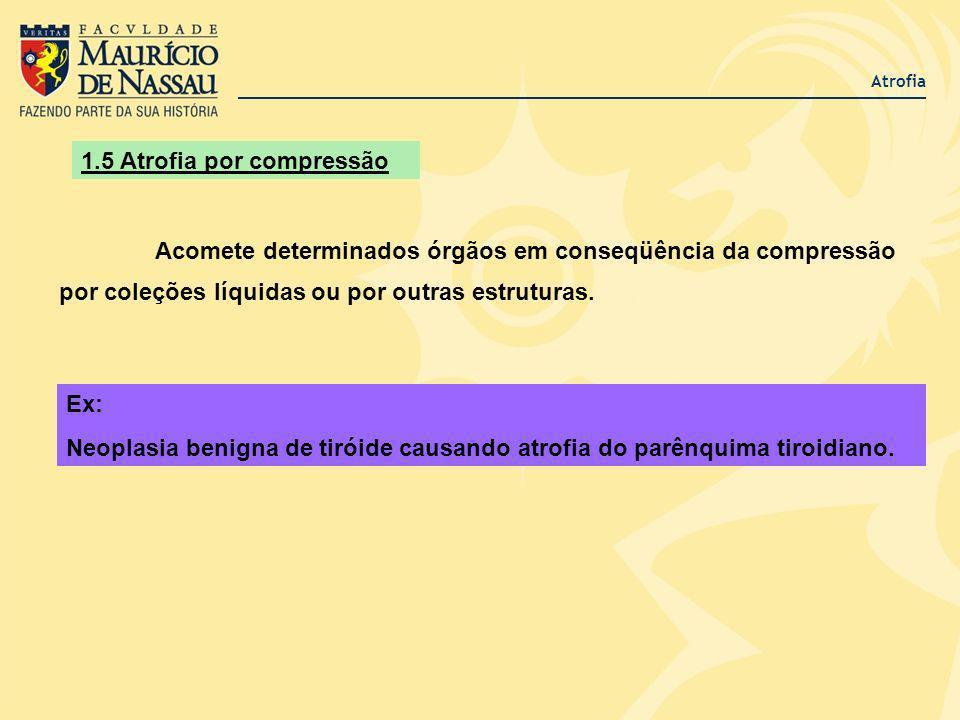 Atrofia 1.5 Atrofia por compressão Acomete determinados órgãos em conseqüência da compressão por coleções líquidas ou por outras estruturas. Ex: Neopl
