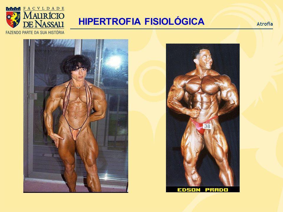 Atrofia HIPERTROFIA FISIOLÓGICA