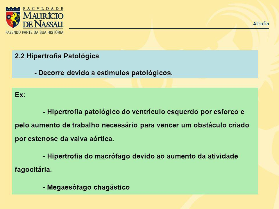 Atrofia Ex: - Hipertrofia patológico do ventrículo esquerdo por esforço e pelo aumento de trabalho necessário para vencer um obstáculo criado por este