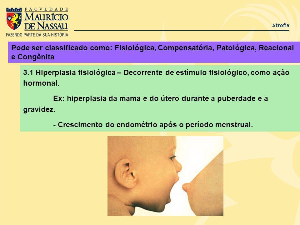 Atrofia Pode ser classificado como: Fisiológica, Compensatória, Patológica, Reacional e Congênita 3.1 Hiperplasia fisiológica – Decorrente de estímulo