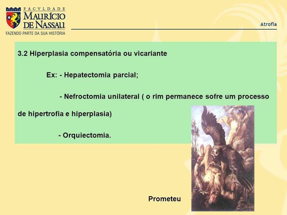 Atrofia 3.2 Hiperplasia compensatória ou vicariante Ex: - Hepatectomia parcial; - Nefroctomia unilateral ( o rim permanece sofre um processo de hipert