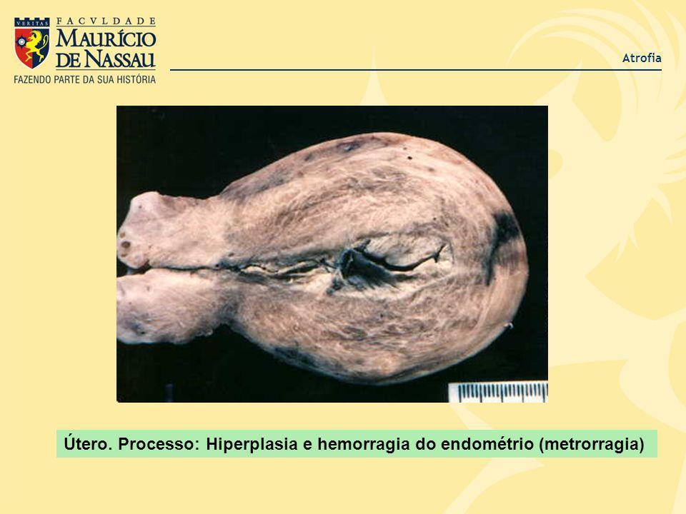 Atrofia Útero. Processo: Hiperplasia e hemorragia do endométrio (metrorragia)
