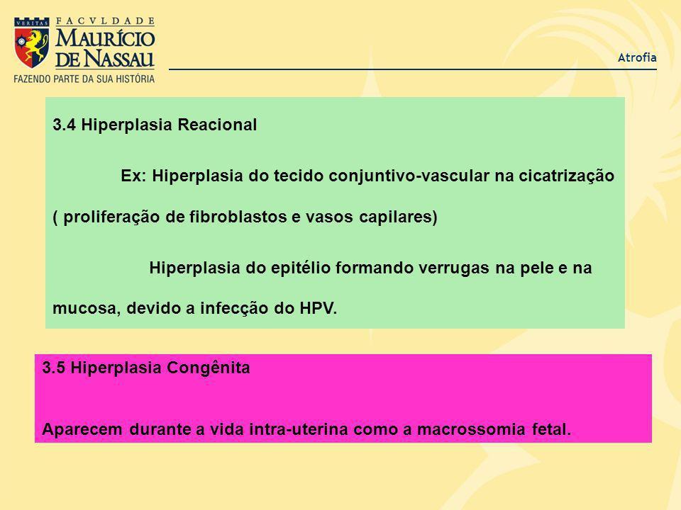 Atrofia 3.4 Hiperplasia Reacional Ex: Hiperplasia do tecido conjuntivo-vascular na cicatrização ( proliferação de fibroblastos e vasos capilares) Hipe