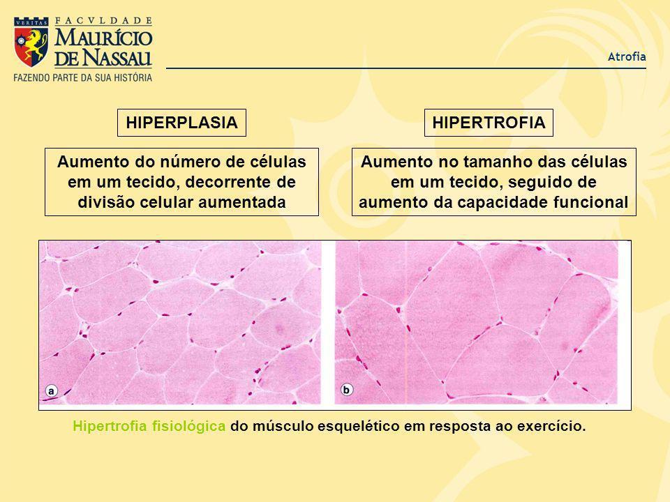 Atrofia HIPERPLASIAHIPERTROFIA Aumento do número de células em um tecido, decorrente de divisão celular aumentada Aumento no tamanho das células em um