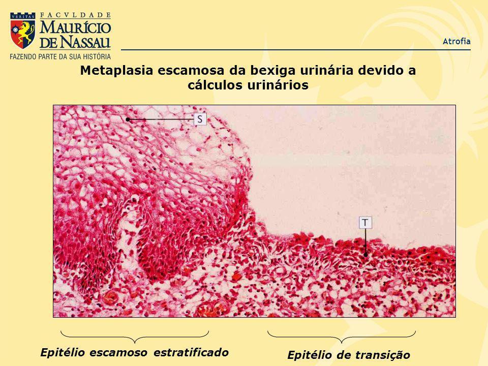 Atrofia Metaplasia escamosa da bexiga urinária devido a cálculos urinários Epitélio escamoso estratificado Epitélio de transição