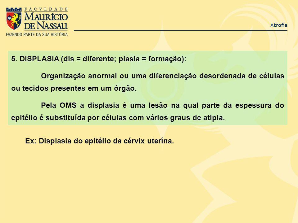 Atrofia 5. DISPLASIA (dis = diferente; plasia = formação): Organização anormal ou uma diferenciação desordenada de células ou tecidos presentes em um