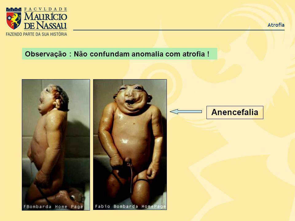 Atrofia Anencefalia Observação : Não confundam anomalia com atrofia !