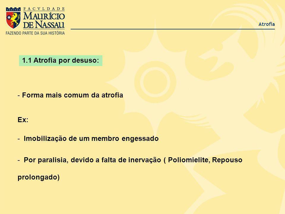 Atrofia - Forma mais comum da atrofia Ex: - Imobilização de um membro engessado - Por paralisia, devido a falta de inervação ( Poliomielite, Repouso p