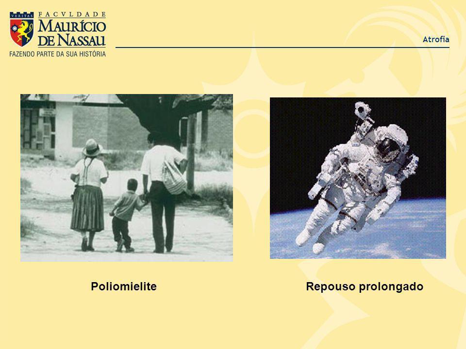 Atrofia Poliomielite Repouso prolongado