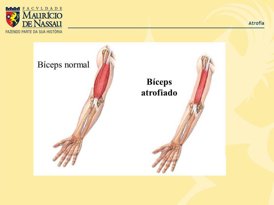 Atrofia Bíceps normal Bíceps atrofiado