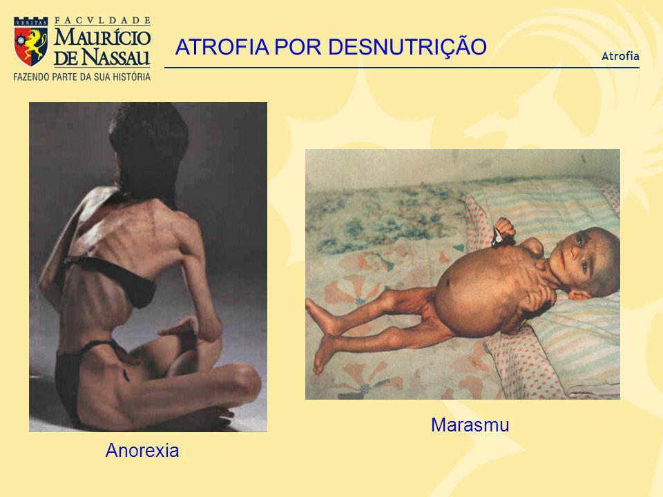 Atrofia ATROFIA POR DESNUTRIÇÃO Marasmu Anorexia