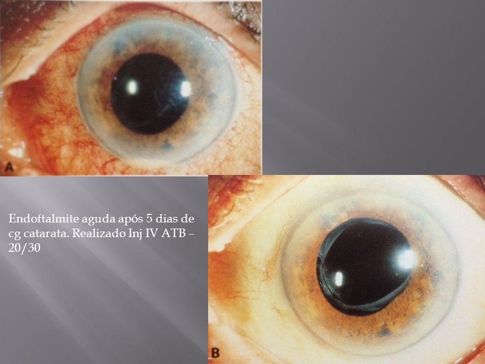 Endoftalmite aguda após 5 dias de cg catarata. Realizado Inj IV ATB – 20/30