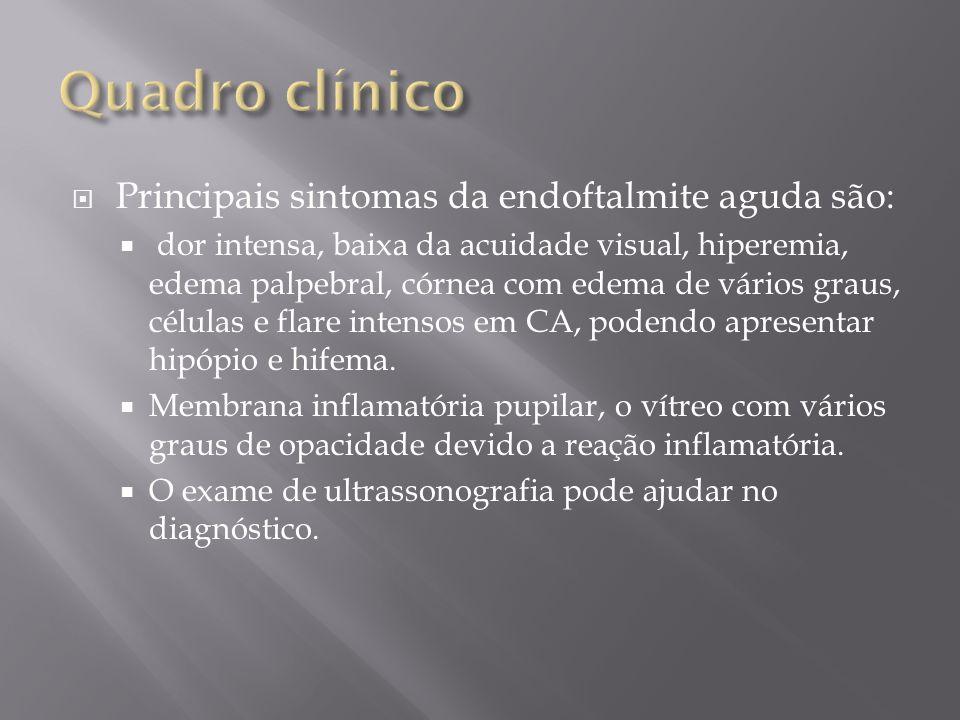 Principais sintomas da endoftalmite aguda são: dor intensa, baixa da acuidade visual, hiperemia, edema palpebral, córnea com edema de vários graus, cé