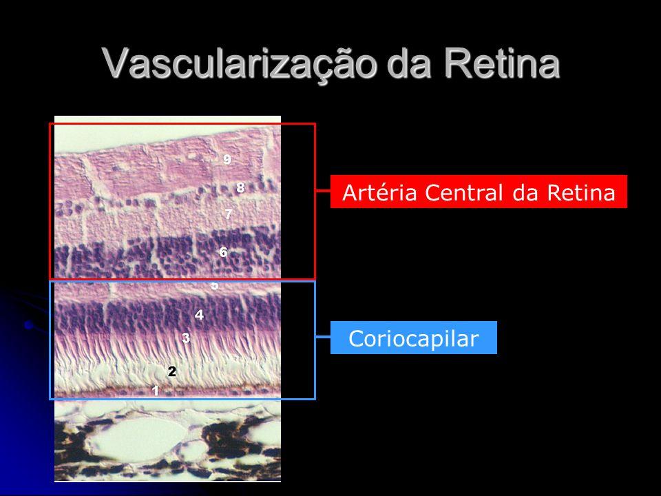 Fotoquímica da Visão Fotorreceptores contêm subst.