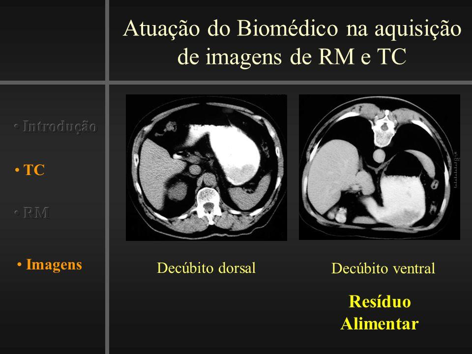 Atuação do Biomédico na aquisição de imagens de RM e TC Imagens TC Decúbito dorsal Decúbito ventral Resíduo Alimentar