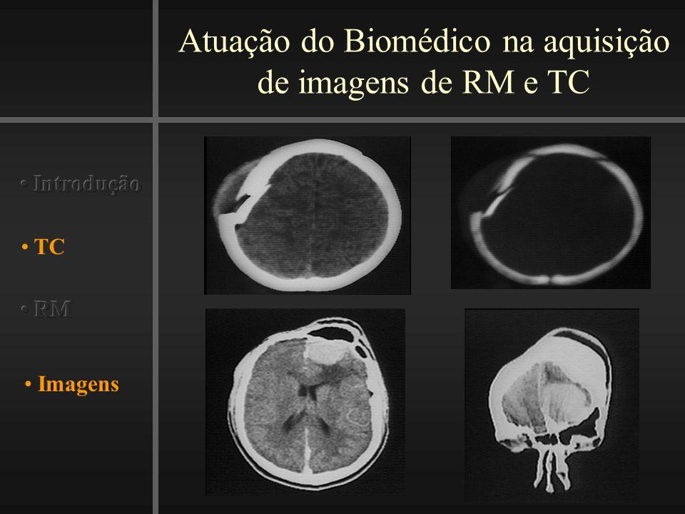 Atuação do Biomédico na aquisição de imagens de RM e TC Imagens TC