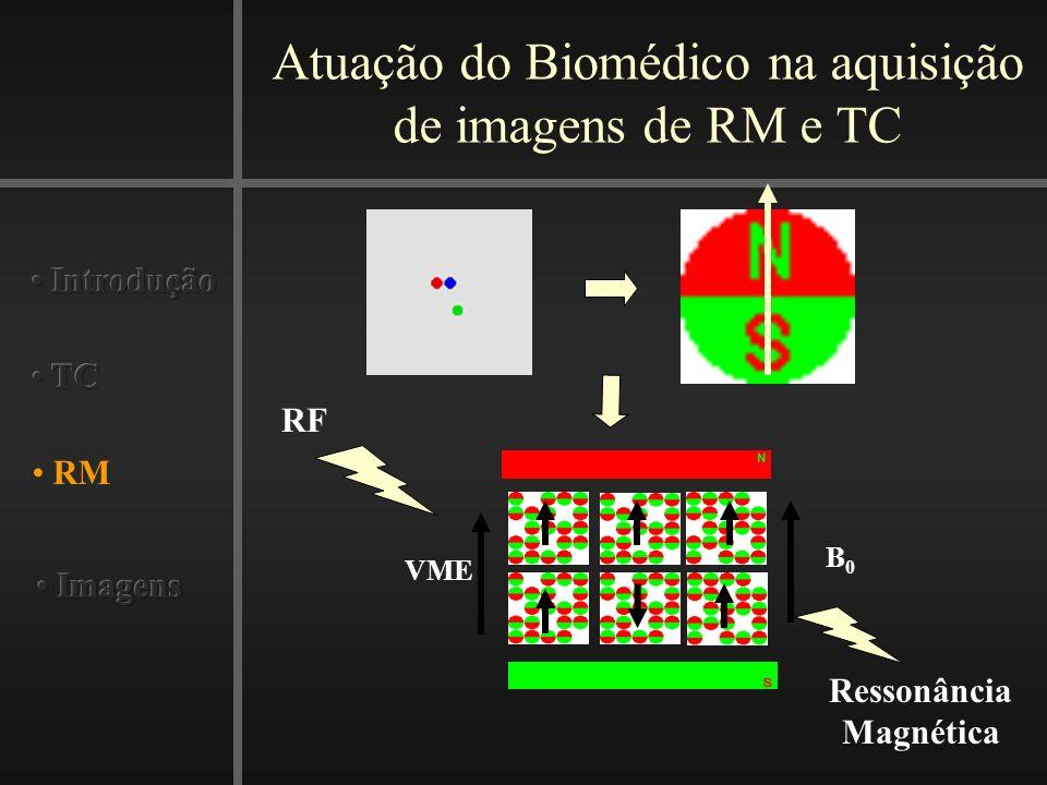 Atuação do Biomédico na aquisição de imagens de RM e TC RM B0B0 VME RF Ressonância Magnética
