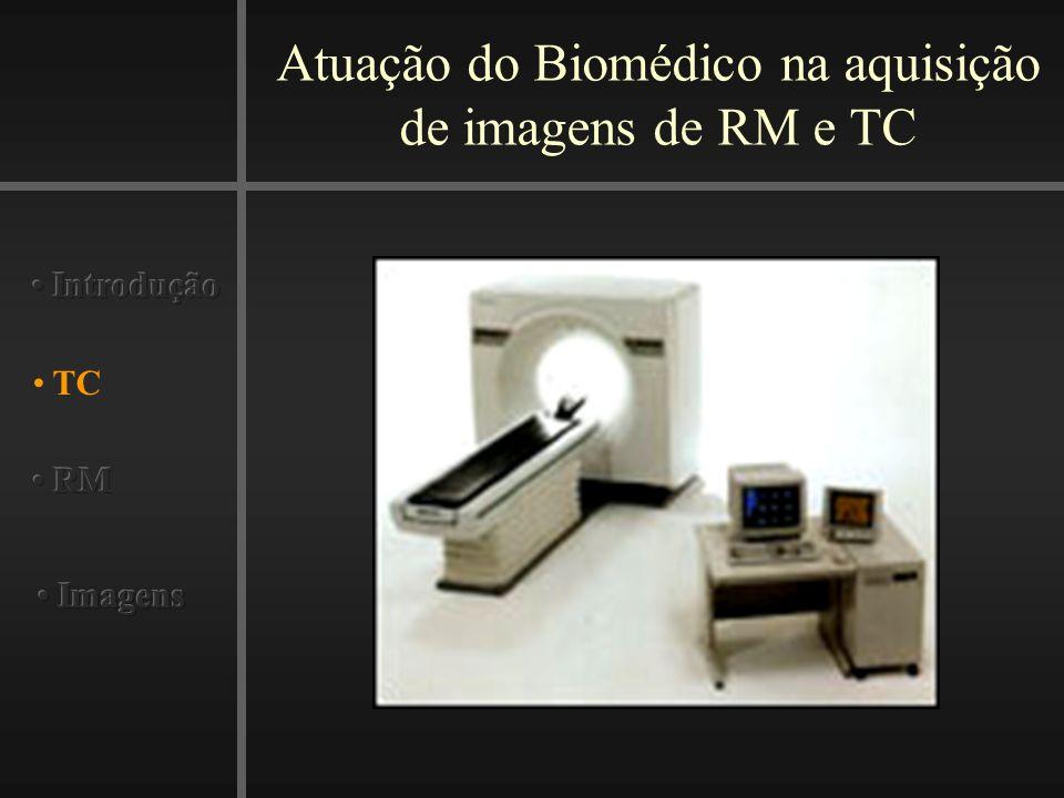 Atuação do Biomédico na aquisição de imagens de RM e TC Imagens TC Contraste 4 Fases