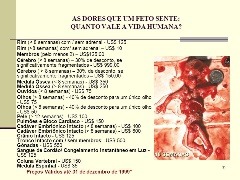 31 AS DORES QUE UM FETO SENTE: QUANTO VALE A VIDA HUMANA? Rim (< 8 semanas) com / sem adrenal - US$ 125 Rim (>8 semanas) com/ sem adrenal – US$ 10 Mem