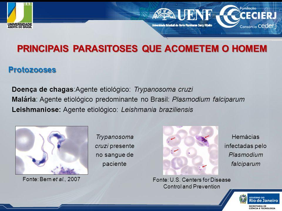 Protozooses PRINCIPAIS PARASITOSES QUE ACOMETEM O HOMEM Doença de chagas:Agente etiológico: Trypanosoma cruzi Malária: Agente etiológico predominante