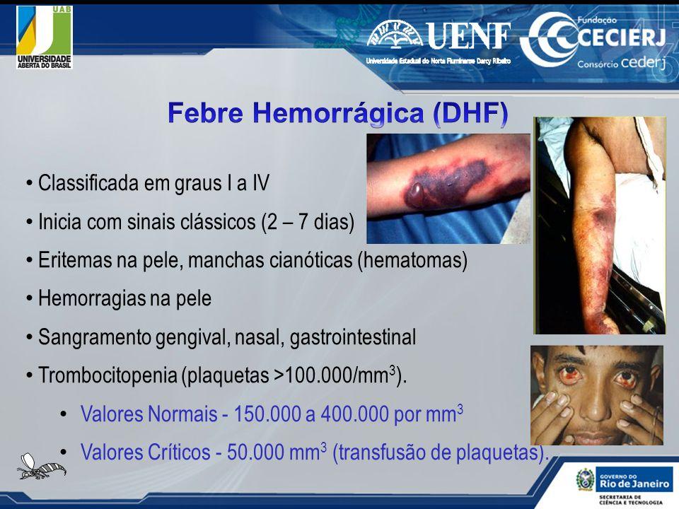 Classificada em graus I a IV Inicia com sinais clássicos (2 – 7 dias) Eritemas na pele, manchas cianóticas (hematomas) Hemorragias na pele Sangramento