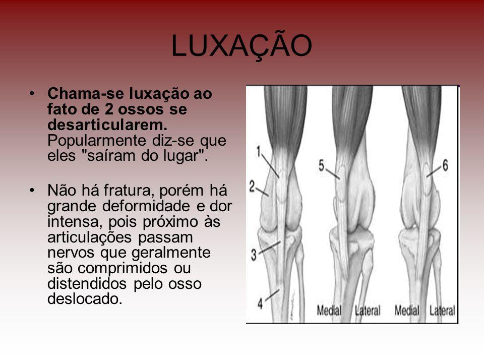 LUXAÇÃO Chama-se luxação ao fato de 2 ossos se desarticularem. Popularmente diz-se que eles