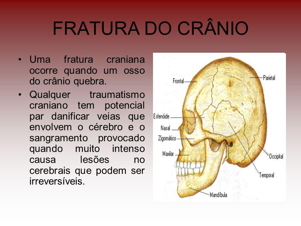 FRATURA DO CRÂNIO Uma fratura craniana ocorre quando um osso do crânio quebra. Qualquer traumatismo craniano tem potencial par danificar veias que env