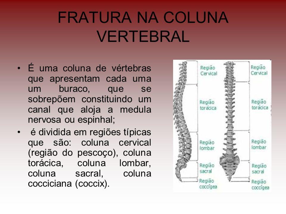 FRATURA NA COLUNA VERTEBRAL É uma coluna de vértebras que apresentam cada uma um buraco, que se sobrepõem constituindo um canal que aloja a medula ner