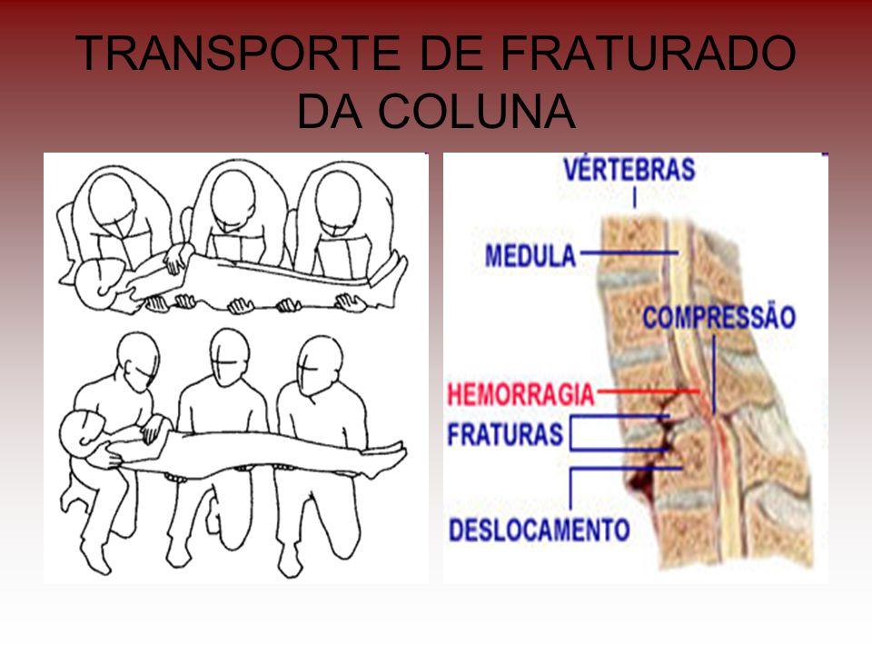 TRANSPORTE DE FRATURADO DA COLUNA