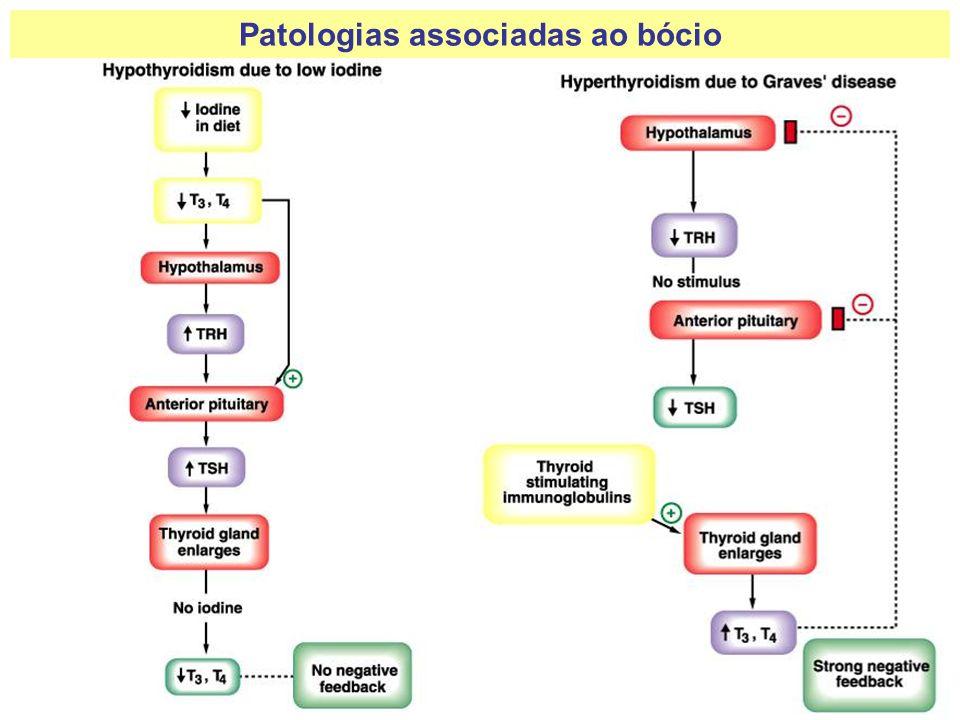 Principais Sintomas: - Fadiga; - Sonolência; - Lentidão muscular e mental; - Mixedema; - Cretinismo; - Bócio.