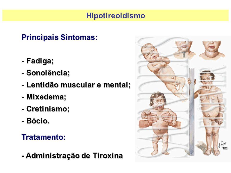 Principais Sintomas: - Fadiga; - Sonolência; - Lentidão muscular e mental; - Mixedema; - Cretinismo; - Bócio. Tratamento: - Administração de Tiroxina