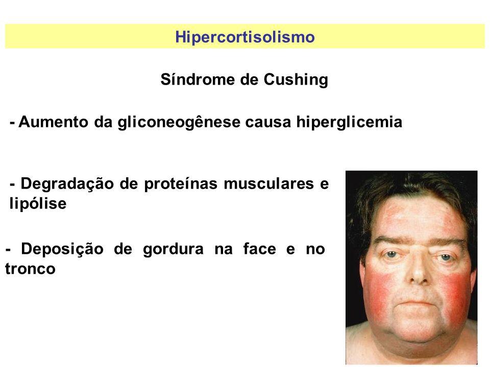 Hipercortisolismo Síndrome de Cushing - Aumento da gliconeogênese causa hiperglicemia - Degradação de proteínas musculares e lipólise - Deposição de g