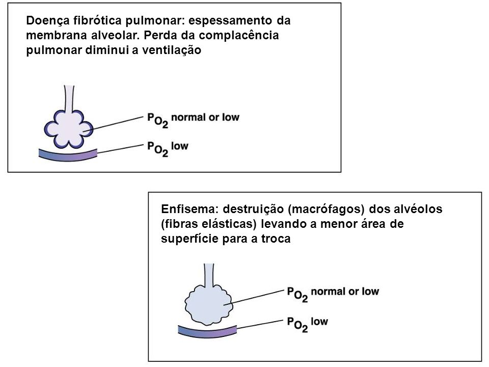 Enfisema: destruição (macrófagos) dos alvéolos (fibras elásticas) levando a menor área de superfície para a troca Doença fibrótica pulmonar: espessame